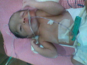 DARSHI PREMATURE BABY